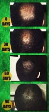 hair regrowth process from back