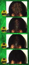 front of head hair regrowth